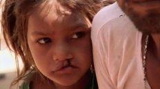 Smile Pinki - Documentary Trailer